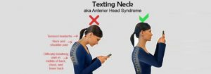 Chiropractic Care for Text Neck in Kirkland WA